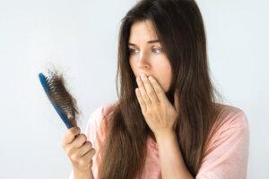 hair loss at younger age