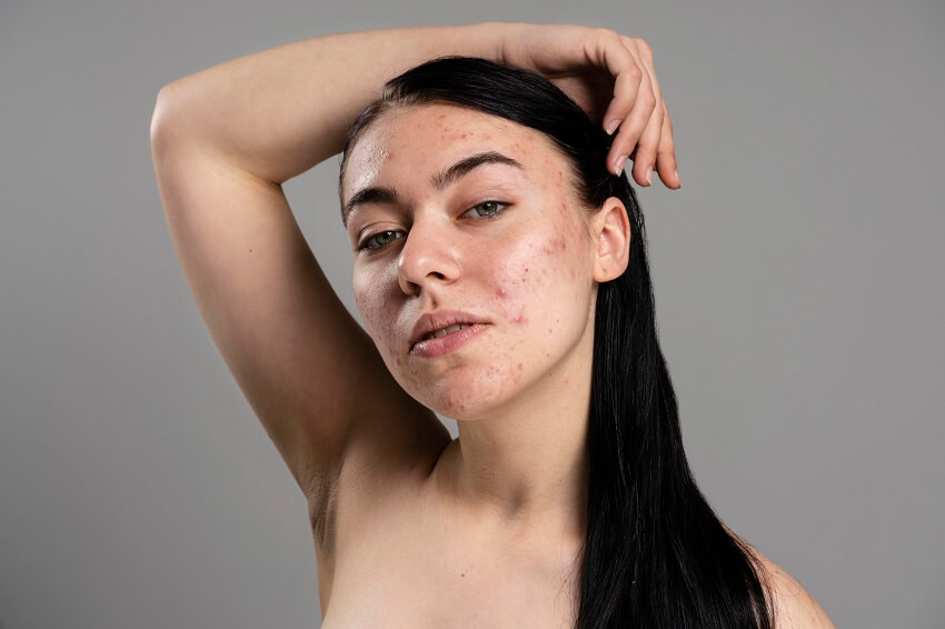 How To Deal With Acne on Face?